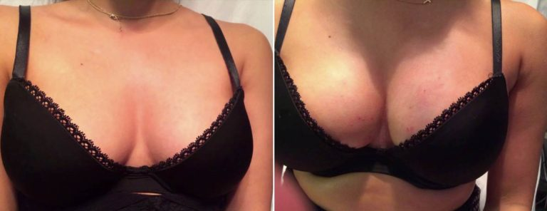 PRP Breastlift before and after on larger breasts, more filler