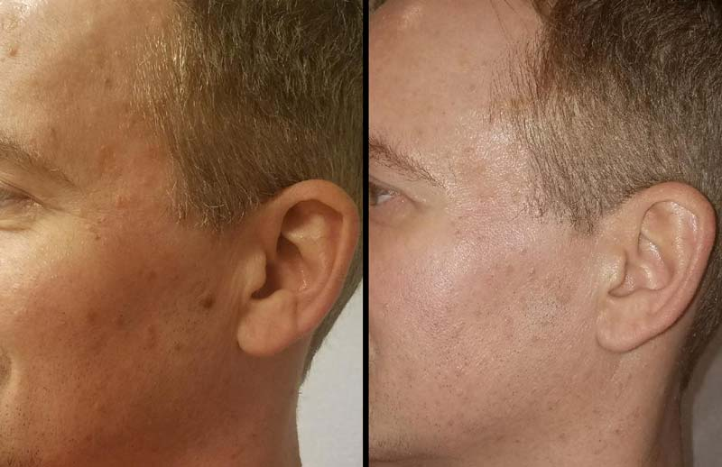 Before and after picture of Dan a few weeks after PRP Facial
