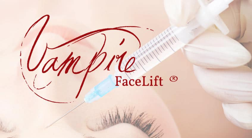 Vampire Facelift® PRP injections