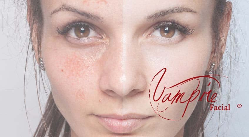 Vampire Facial® micro-needling before and after