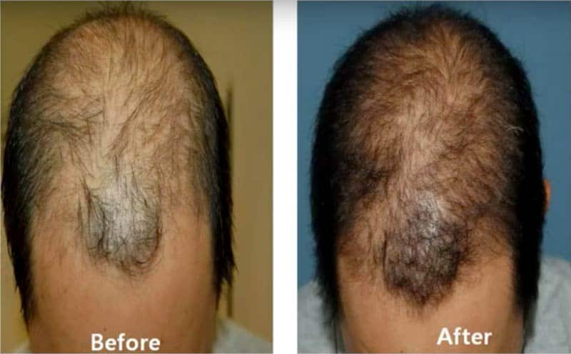 PRP Hair Restoration at Sunshine Health Before and After pic 1