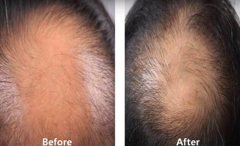 Sunshine Health PRP Hair Restoration Before and After pic 2