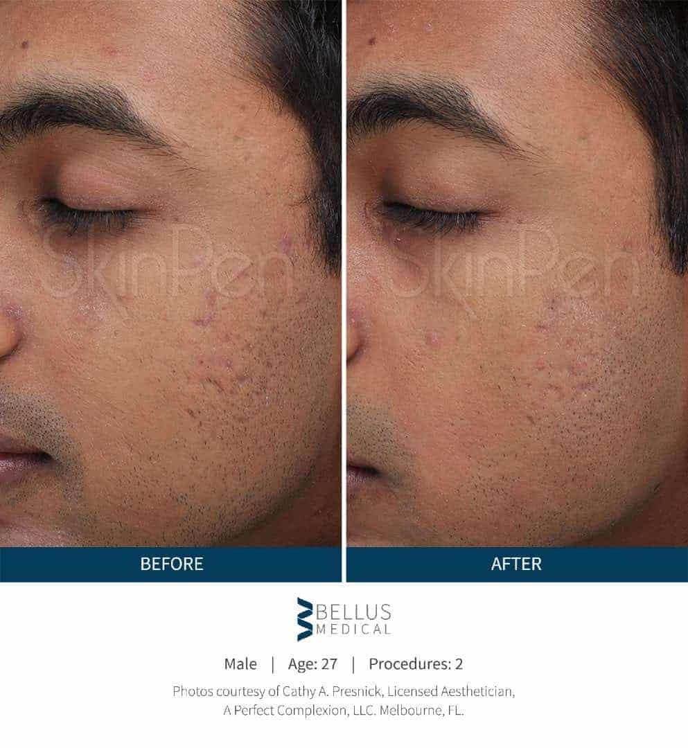 SkinPen® before and after 4