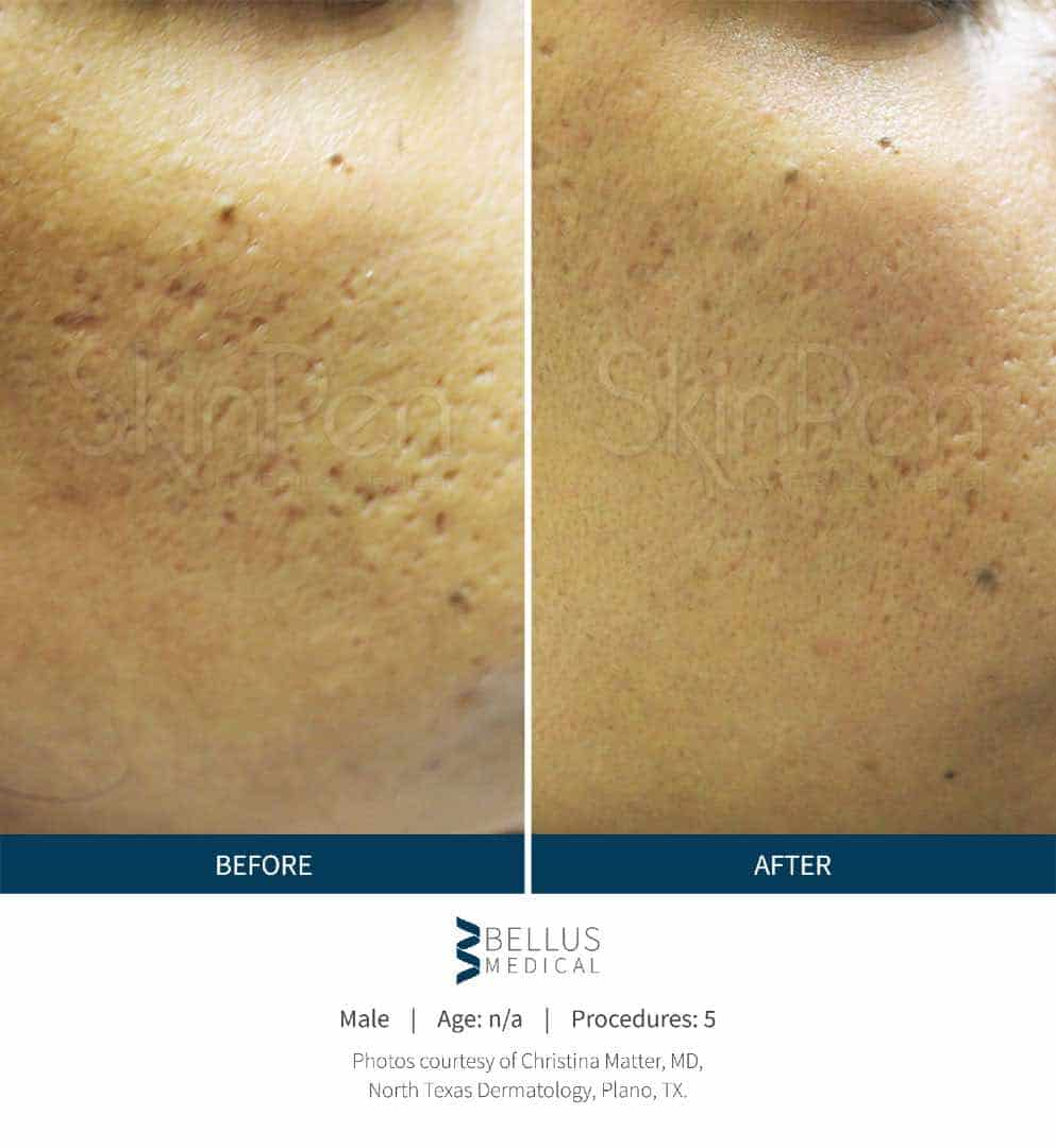SkinPen® before and after 3